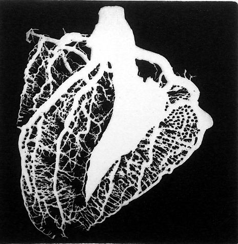 heart 3 photo etching,  2013, 15*15 cm